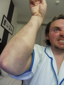 Arm Bruise